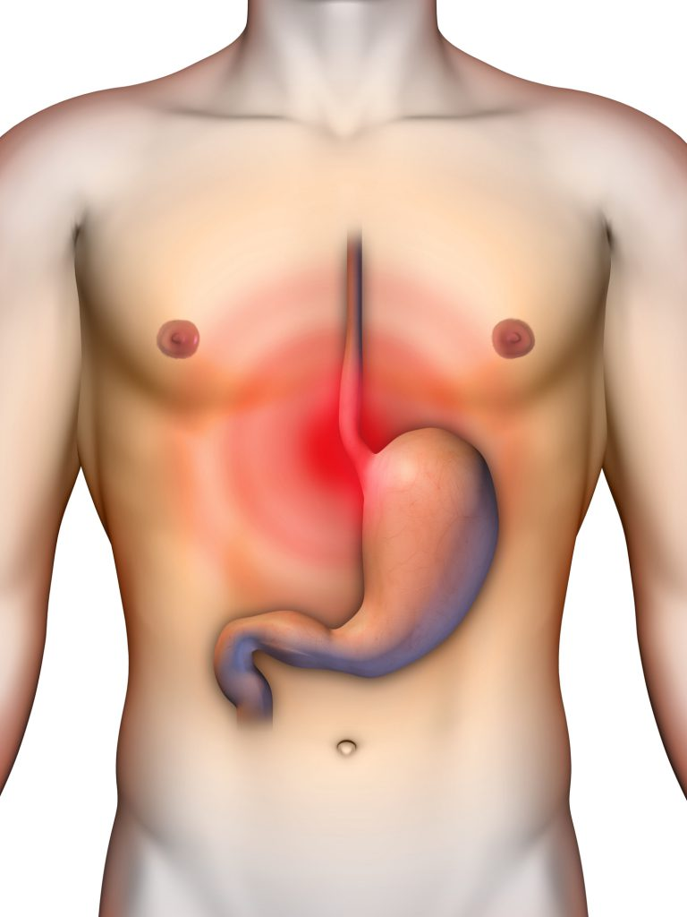 cuanto cuesta una operacion de vesicula por laparoscopia
